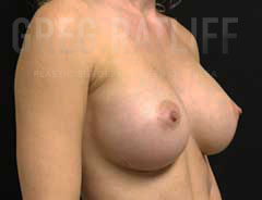 Angle view, breast augmentation, after