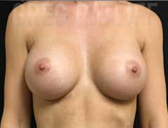 Front View, Breast Augmenation, after