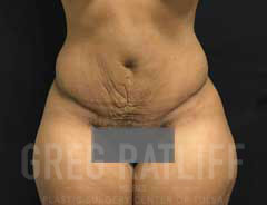 full tummy tuck - front - after