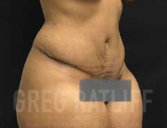 full tummy tuck - tween - after