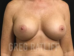 Breast Aug - Front View - After Surgery
