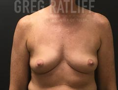 Breast Aug - Front View - Before Surgery