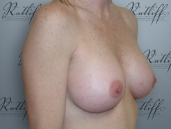 Half Profile before breast aug: 34A to 34C