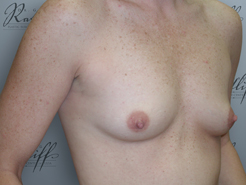 Half Profile before breast augmentation: 34A