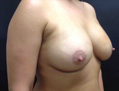 Angle view, breast augmentation after: 34C