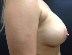 Side View, Breast Augmenation, After: 34C