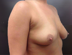 Angle view, breast augmentation before: 34B