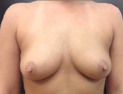Front view, before breast augmentation: 34B