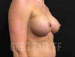Breast Aug - Oblique View - After Surgery