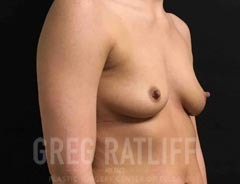 Breast Aug - Oblique View - Before Surgery