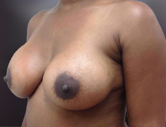 Angle view, breast augmentation after: 38D Full