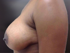 Side View, Breast Augmenation, After: 38D Full