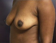 Angle view, breast augmentation before: 36B