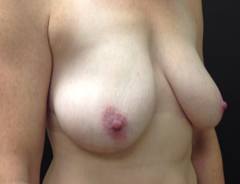 Angle view, breast lift, before