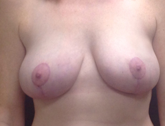 Front view, after breast aug & lift: 36D Full