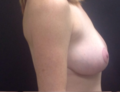 Side view, breast lift, before