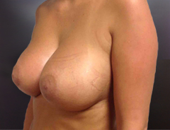 Angle view, breast augmentation after: 32D