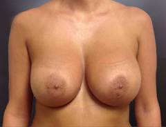 Front view, after breast augmentation: 32D