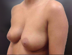 Angle view, breast augmentation before: 32B