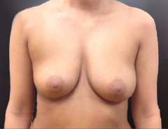 Front view, before breast augmentation: 32B