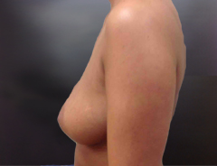 Side View, Breast Augmenation, Before: 32B
