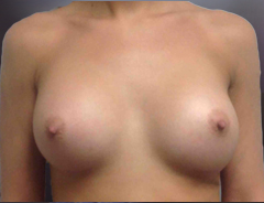 Front View After breast augmentation:34C Full