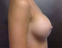 Side View, Breast Augmenation, After: 34C Full