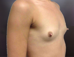 Angle view, breast augmentation before: 34A