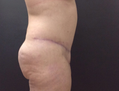 Side view, full tummy tuck, after