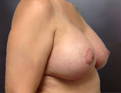 Angle view, breast aug & lift after: fuller higher