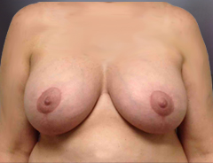 Front view breast augmentation & lift: FullerHighe