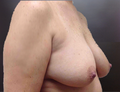 Angle view, breast augmentation & lift before: 36D