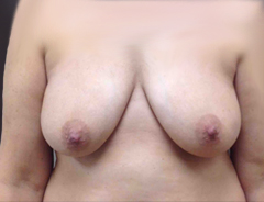 Front view, before breast augmentation & lift: 36D