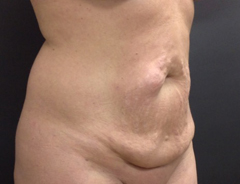 Angle view, full tummy tuck, before