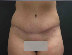 front view, full tummy tuck, after