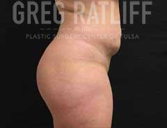 After Liposuction side