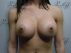 Front View After breast augmentation: 34B to 34C