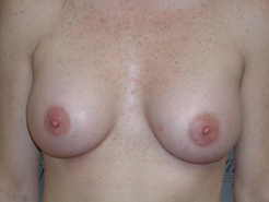 Front View After breast augmentation: 34A to 34C