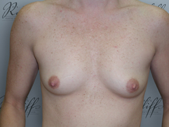 Front view, before breast augmentation: 34A