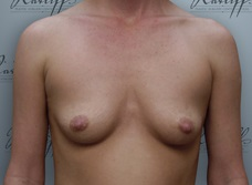 Front view, before breast augmentation: 36A