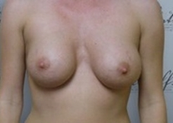 Front View After breast augmentation: 36A to 36D