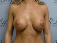 Front View After breast augmentation: 34B to 34D