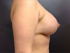 Side View, Breast Aug & Lift, After: 38D Full