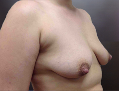 Angle view, breast augmentation & lift before: 36B