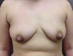Front view, before breast augmentation & lift: 36B