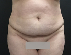 Front View, extended tummy tuck, before