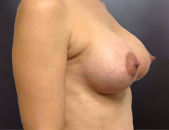 Angle view breast aug & lift:Small 32C