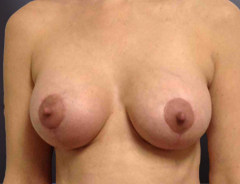 Front view breast aug & lift:Small 32C