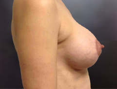 Side View, Breast Aug & Lift, Before: Small 32C