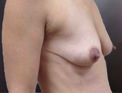 Angle view, breast augmentation & lift before: 32A